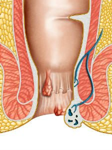 Crise hemorroidaire anatomie